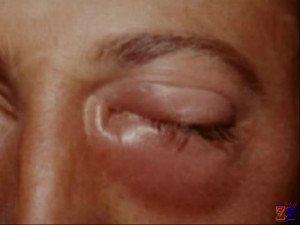 Воспаление слезного канала у взрослого