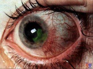 Вирус герпеса - самый страшный враг роговицы