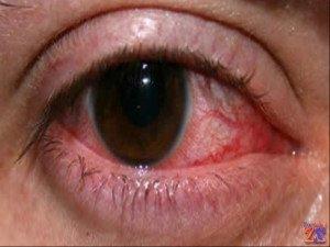 Всегда нужно своевременно лечить болезни глаз