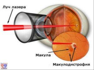 В лечении макулодистрофии применяется лазерное облучение