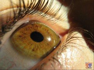 Роговица - прозрачная оболочка глазного яблока