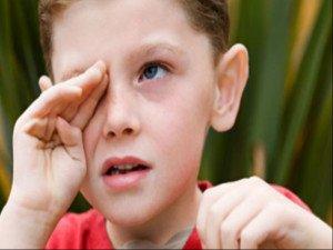 При воспалении глаз ОК-линзы носить нельзя