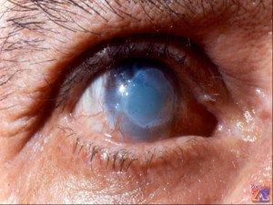Глаз после ожога роговой оболочки