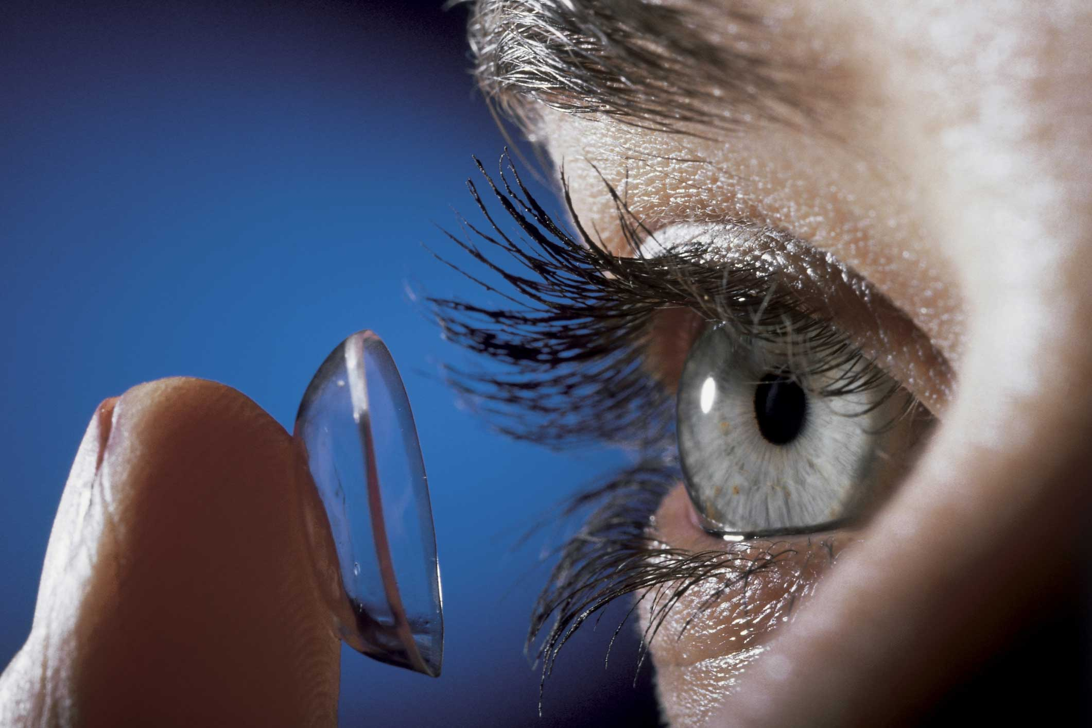 an overview of the contact lens complications and the modern contact lens care systems A good history including lens cleaning method is important in diagnosing a contact lens complication thiomersal was responsible for about 10% of problems related to contact lenses you can refit into daily disposables to minimize the risk of solution reactions and other compounds.