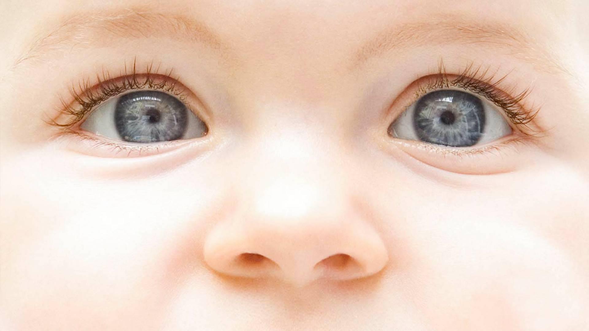 Причины коньюктивита у младенцев
