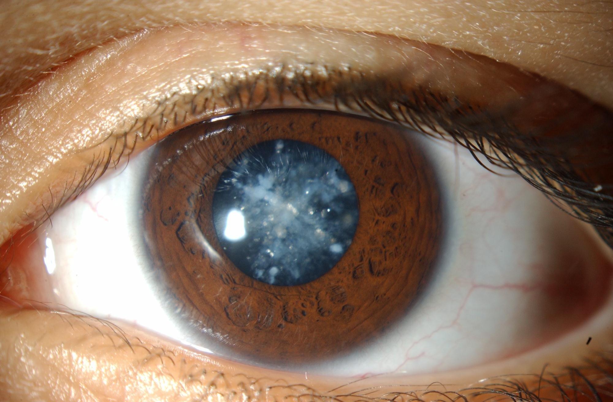 Способы лечения катаракты традиционными методами