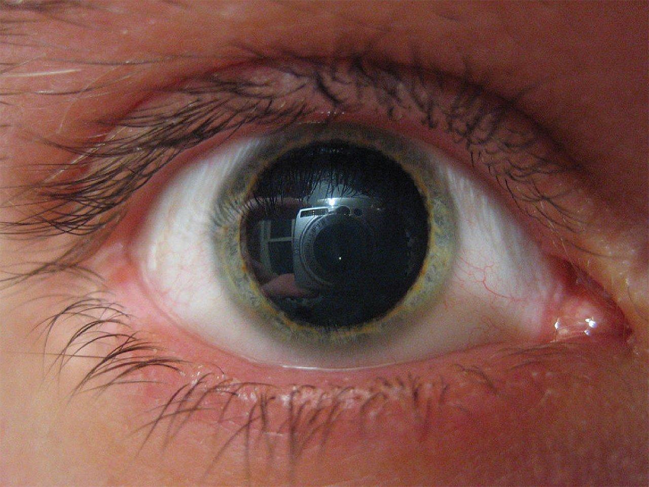 Зрение плюс 5 для ребенка 2 лет
