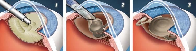 Имплантация линзы