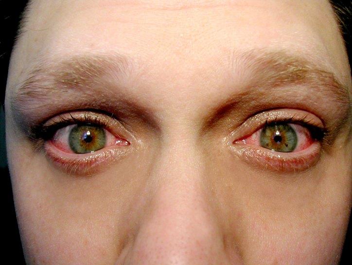 Глаза, поражённые блефароконъюнктивитом