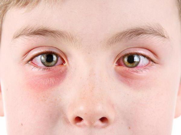 Глаза ребёнка, поражённые блефароконъюнктивитом