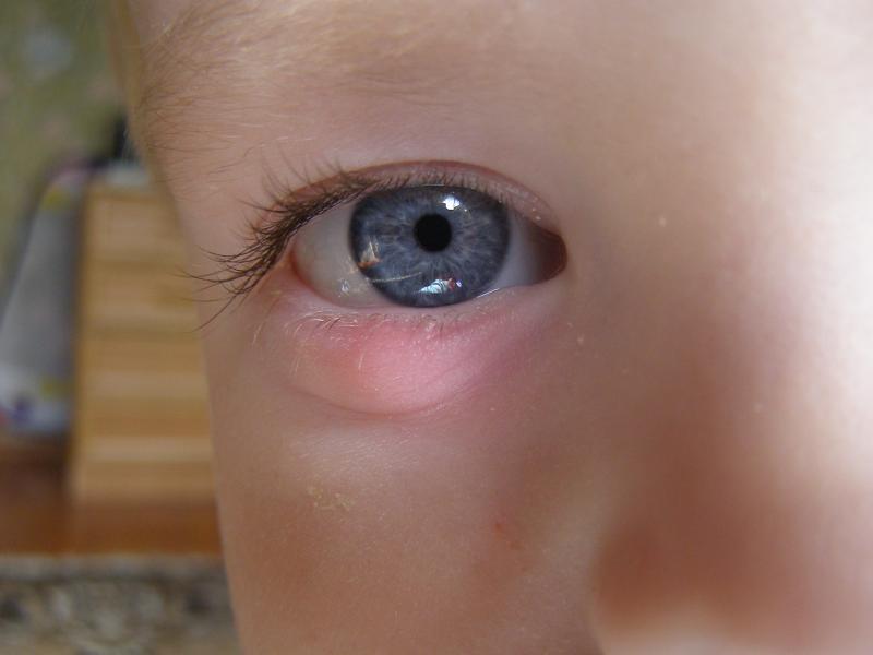 Ячмень на глазу ребёнка