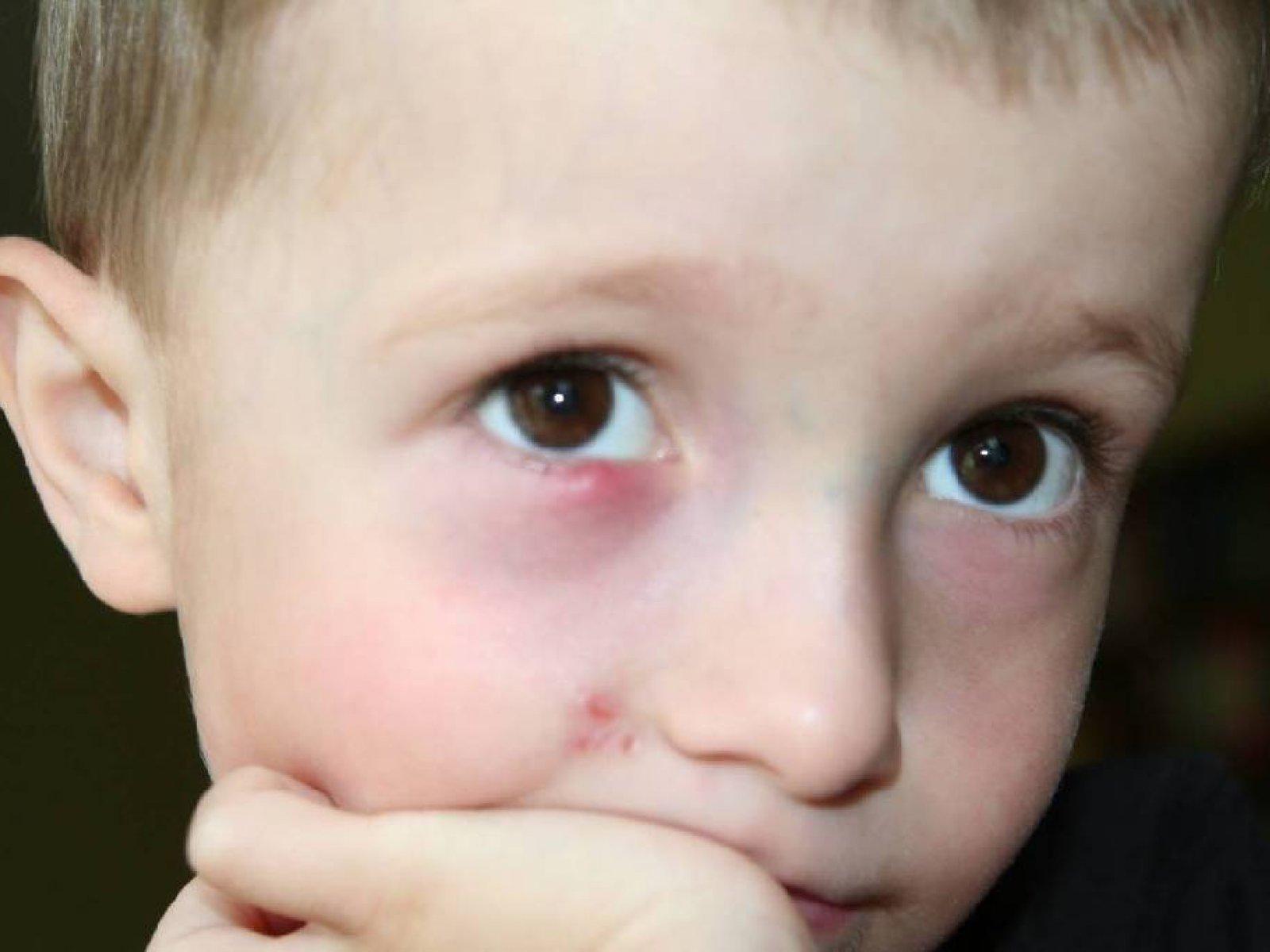 Шишка под глазом у ребенка. Шишка у ребенка. Zdorovyj 33