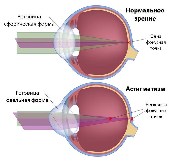 Нормальный глаз и глаз с астигматизмом