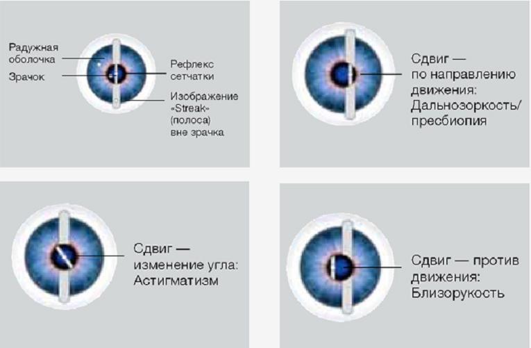 Штриховая ретиноскопия